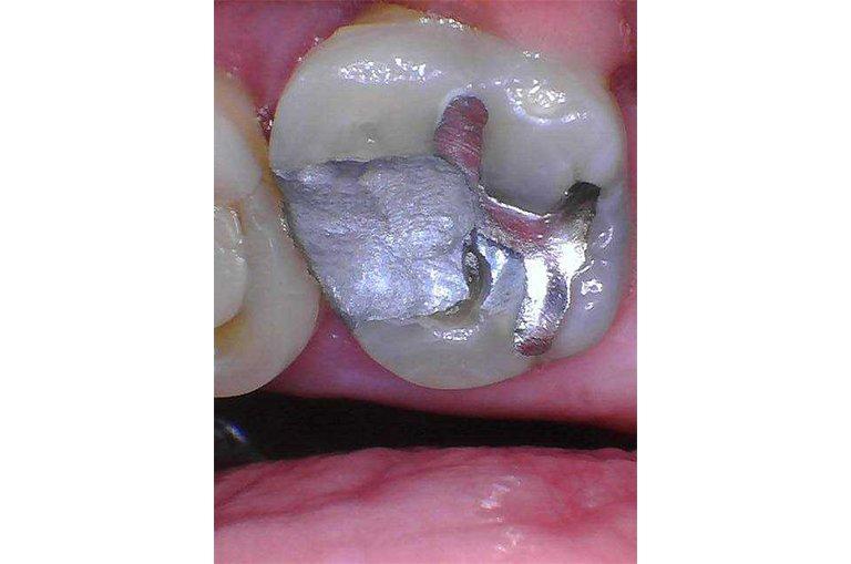 intraoral-camera (4)