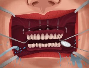 Four Biggest Mistakes To Avoid With All-On-4 (One Day Smile<sup>TM</sup>) Dental Implants